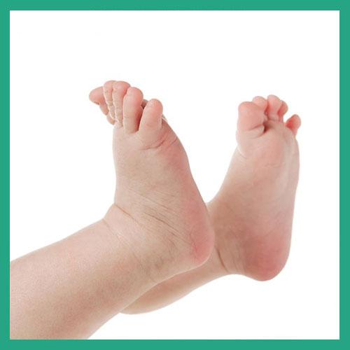 Congenital foot conditions