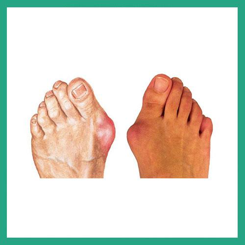 Big toe conditions